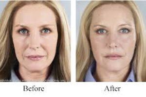 before and after medical beauty treatment in boca raton