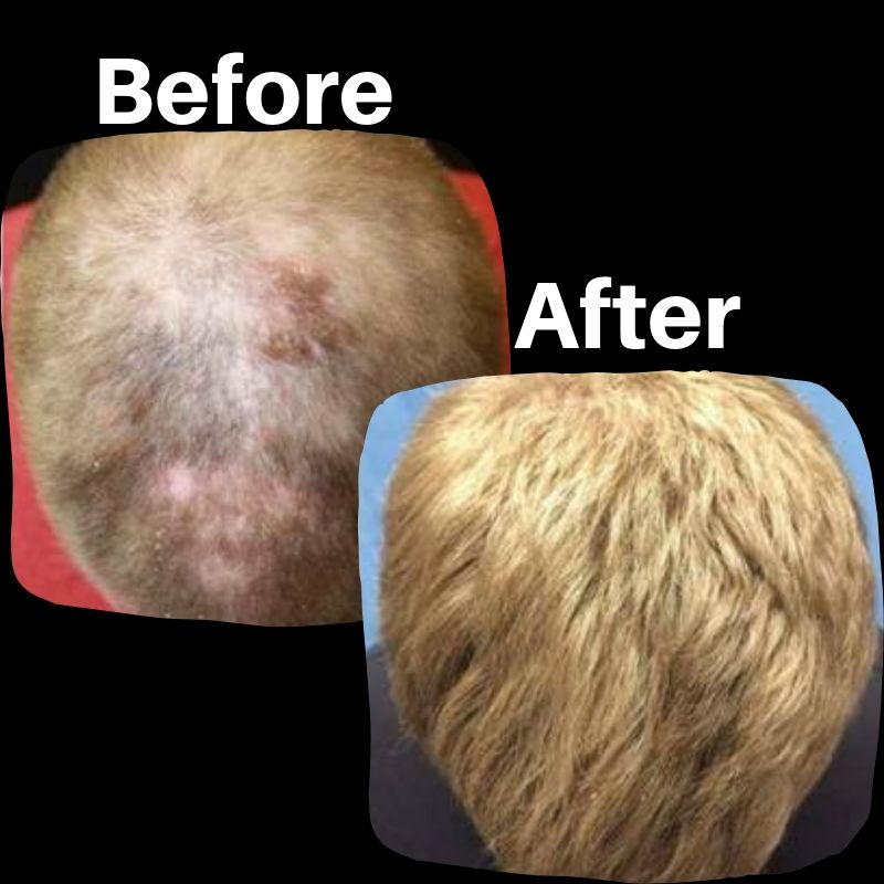 Before and after hair regrowth treatments.
