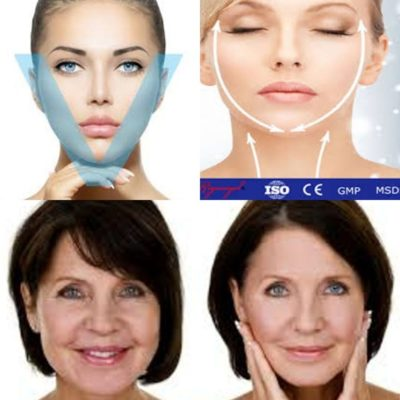 Beauty and health medical treatment before and after.