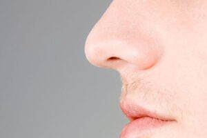 A male who just had a nose job