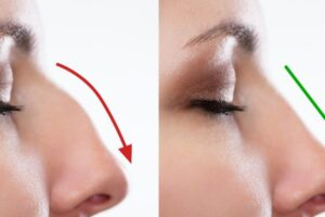 how to get a straight nose