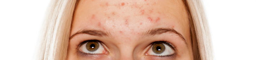 A picture of a 30's woman thinking about how to get ride of acne